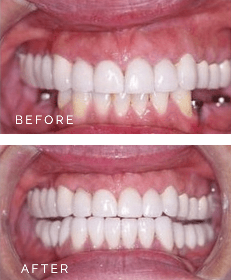 dentalimplants-ba