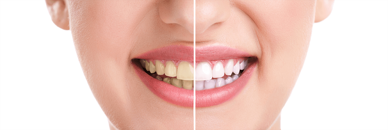 services-whitening